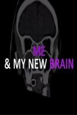 Me & My New Brain